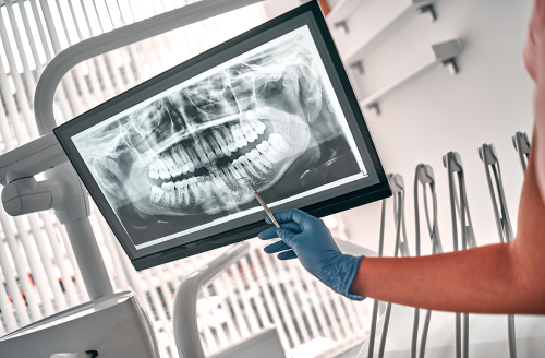 Dental Cleanings X-ray