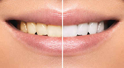 Stained Teeth corrections at Zoma Dental, Dentist in West Bloomfield