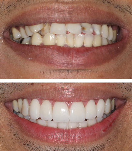 Porcelain Crowns Unsightly